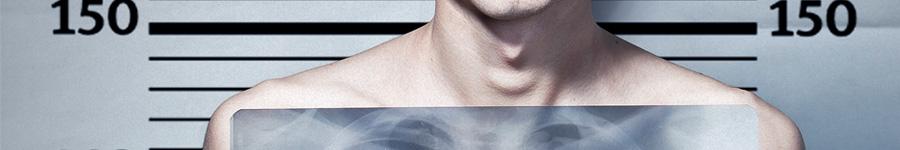 Социалка про туберкулез